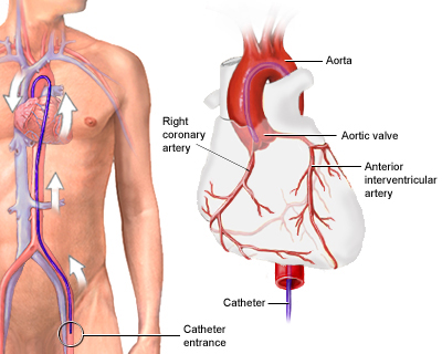 (II)What is Angiography Catheter?